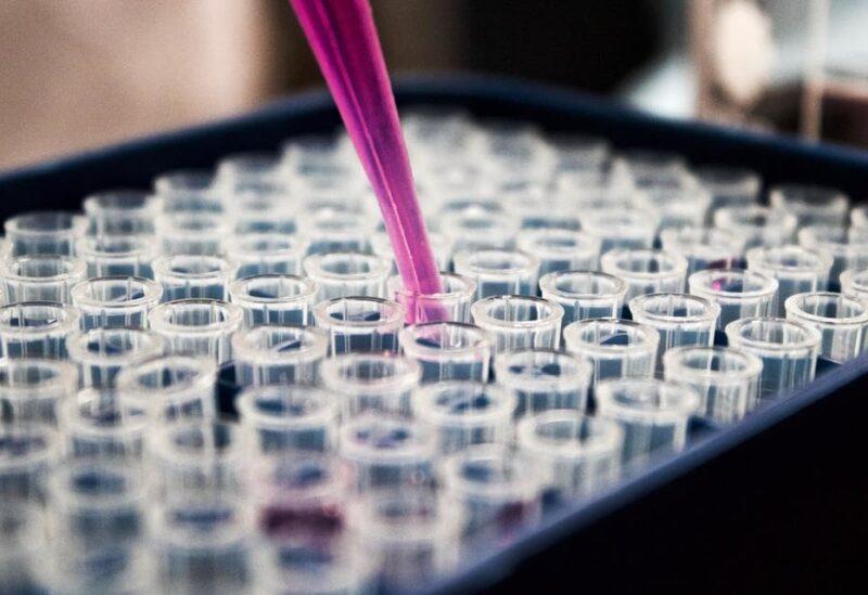 Genomic sequencing in a lab, Bristol, United Kingdom. (File photo: Unsplash, Louis Reed)